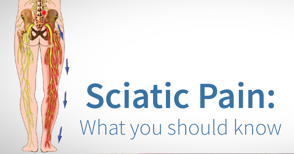 Sciatic Nerve Pain Causes And Relief